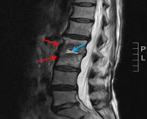 Disco-intervertebrale-RX