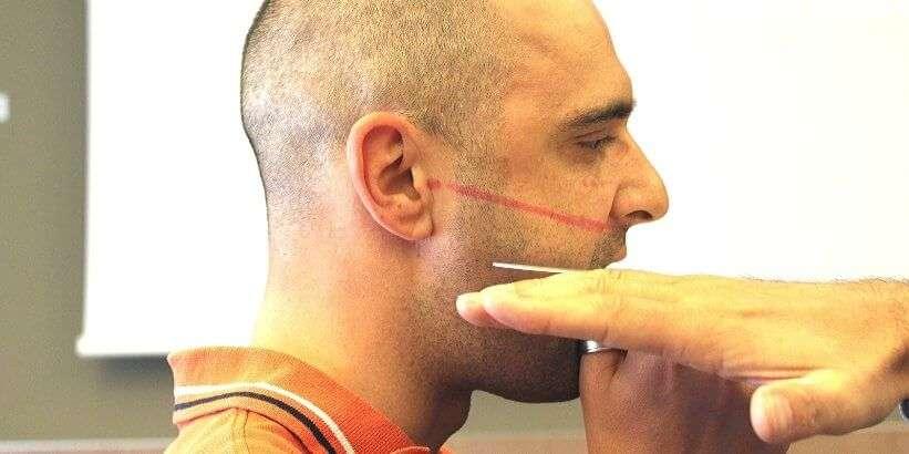 Lezione malocclusione ortopedia mascellari